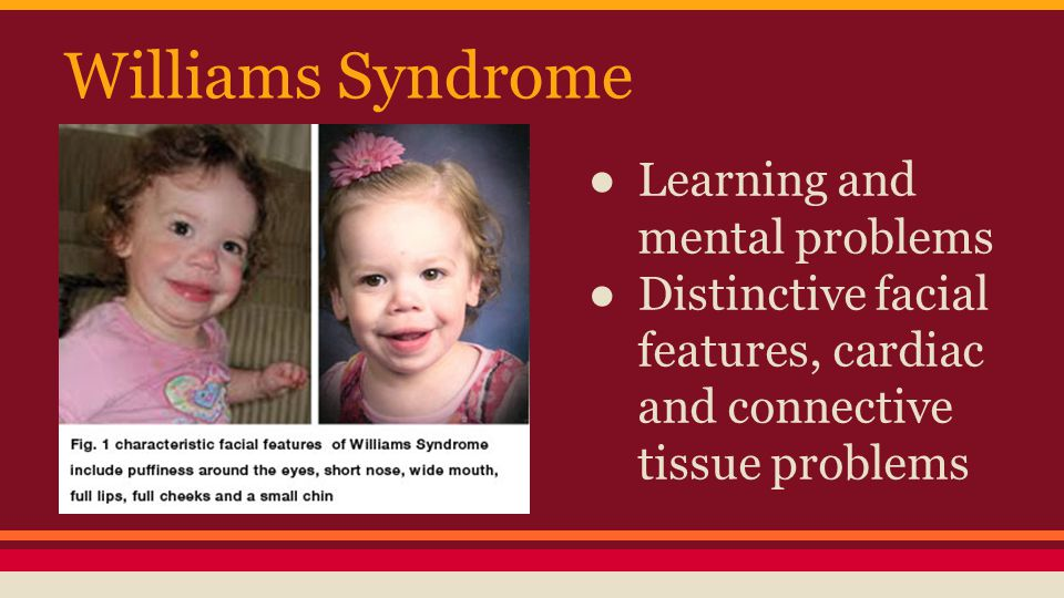 Williams Syndrome Learning and mental problems