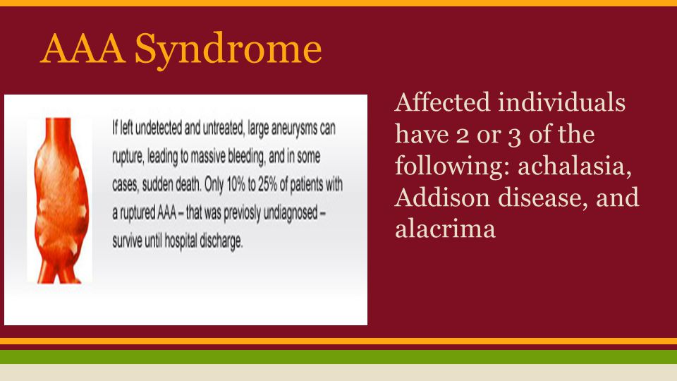 AAA Syndrome Affected individuals have 2 or 3 of the following: achalasia, Addison disease, and alacrima.