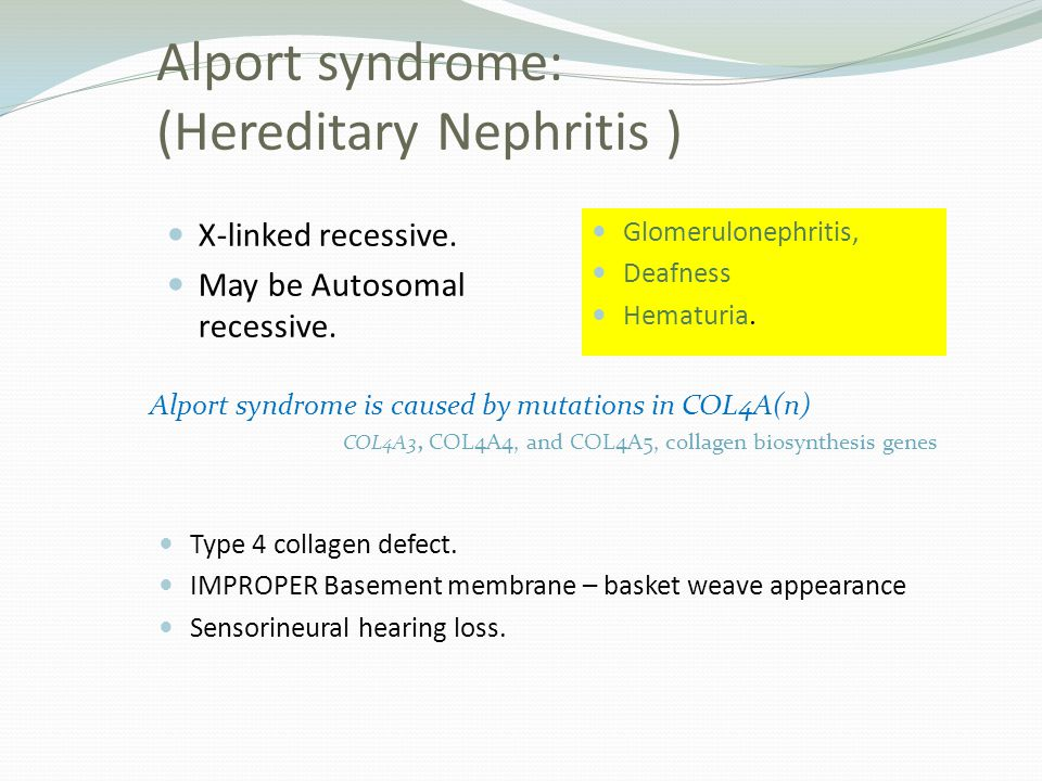 Alport syndrome: (Hereditary Nephritis )