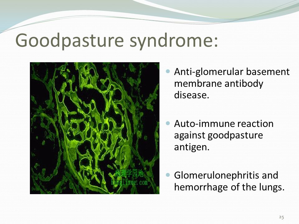 Goodpasture syndrome: