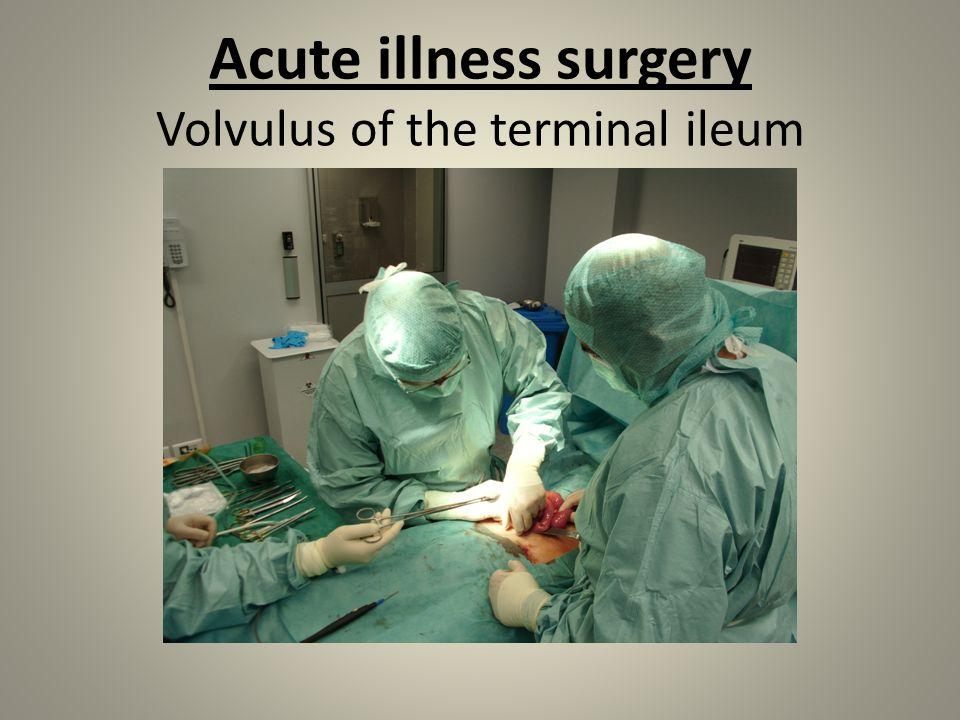 Acute illness surgery Volvulus of the terminal ileum