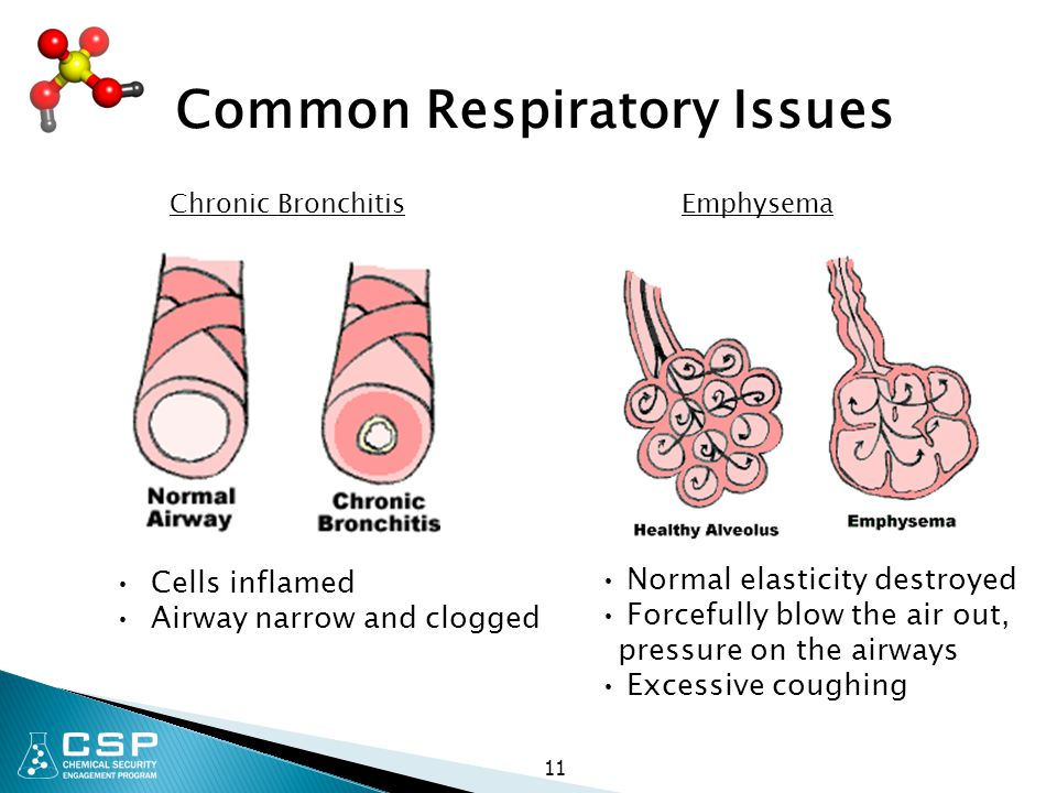 Common Respiratory Issues