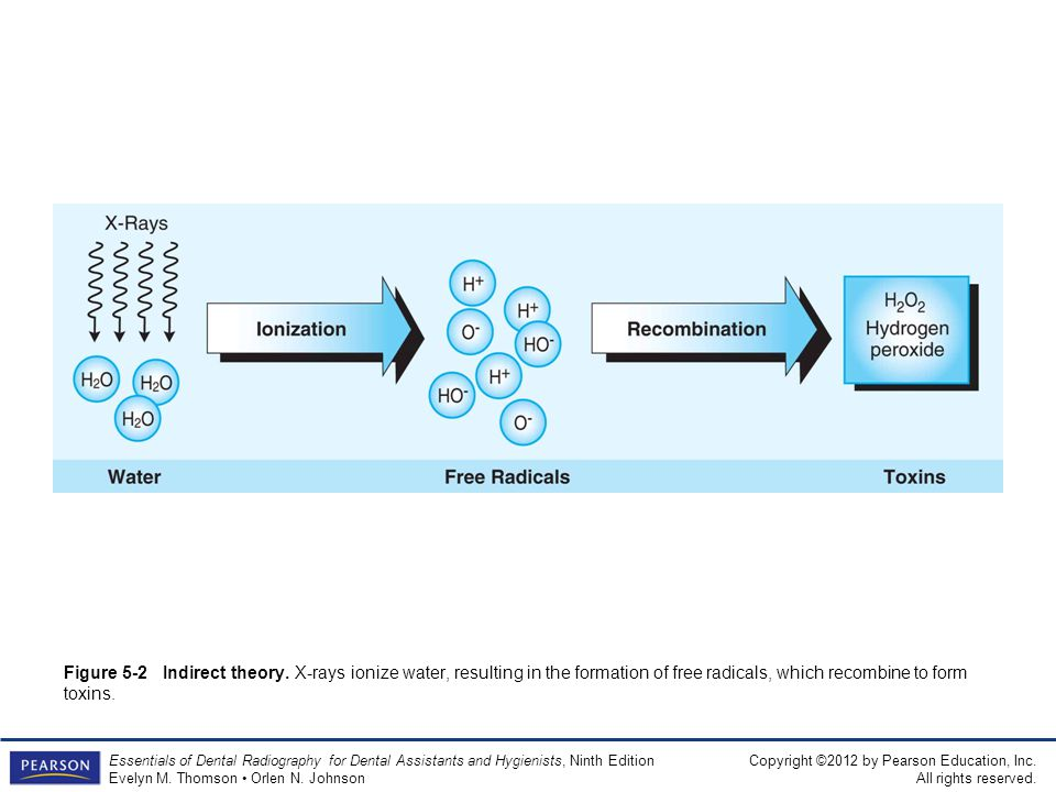 Figure 5-2 Indirect theory