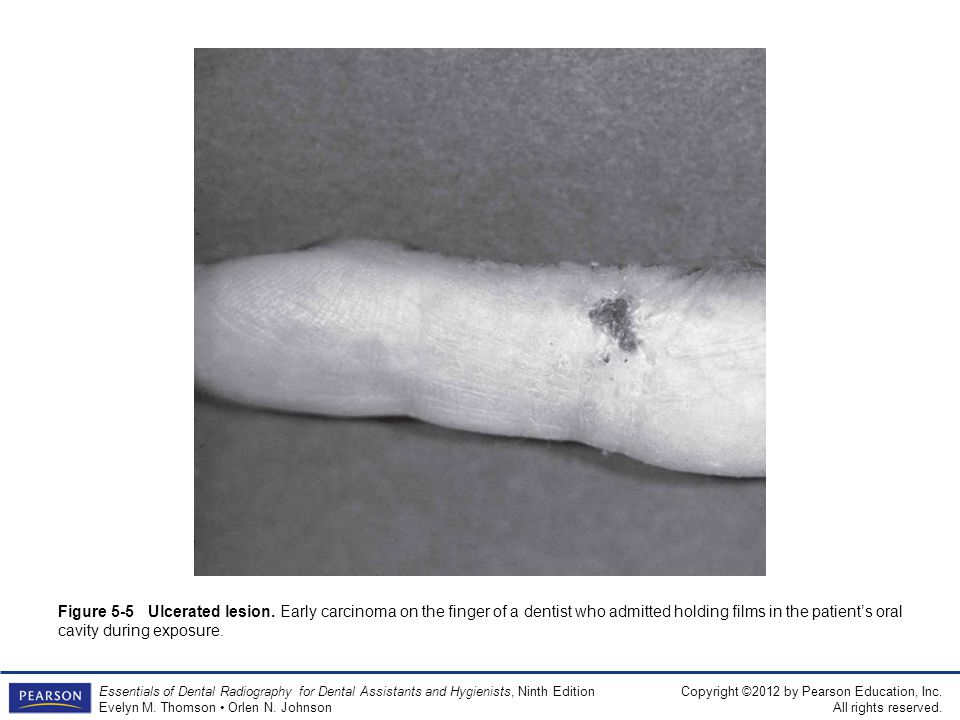 Figure 5-5 Ulcerated lesion