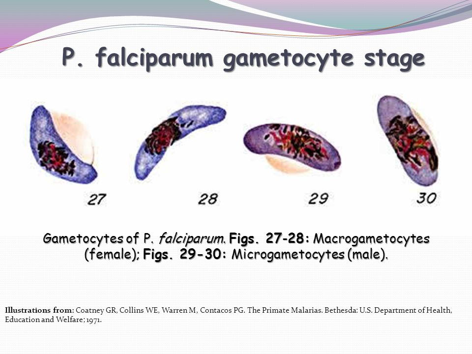 P. falciparum gametocyte stage