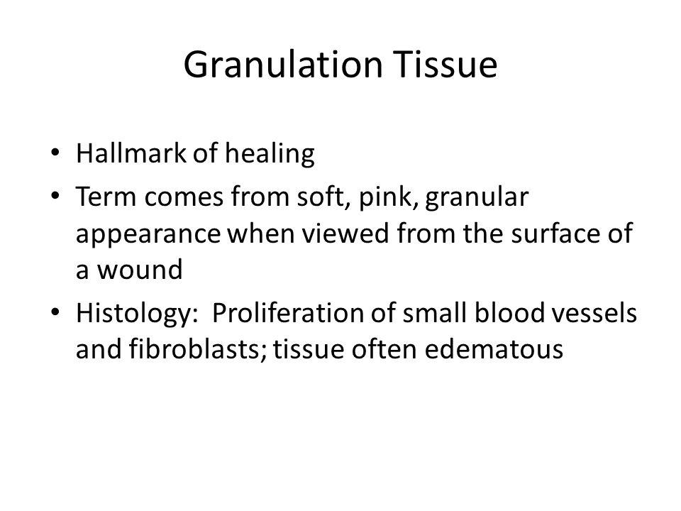 Granulation Tissue Hallmark of healing