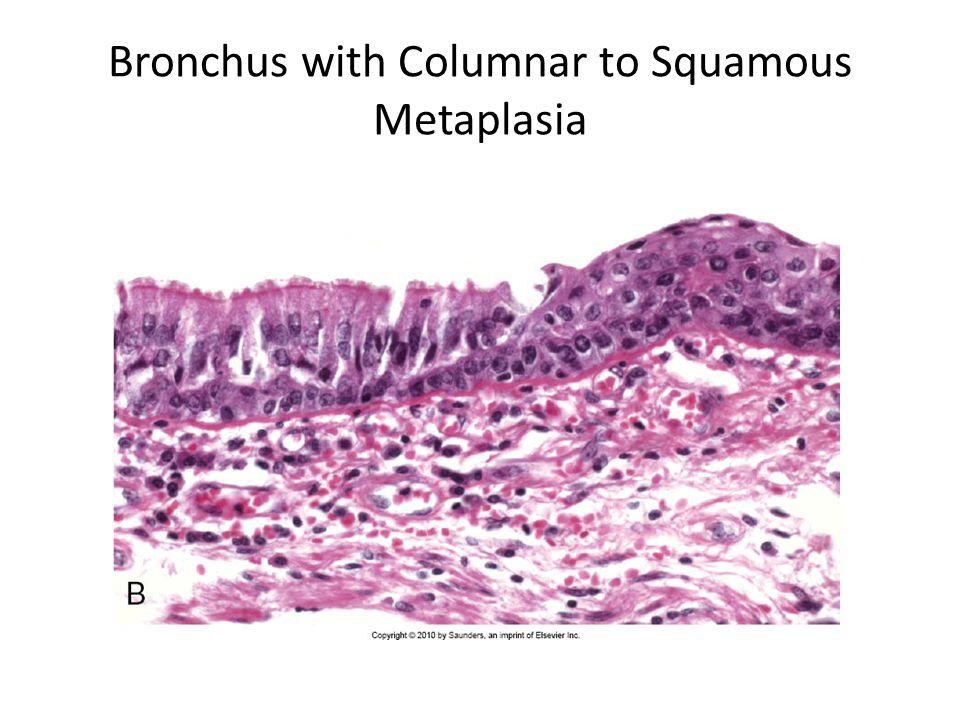 Bronchus with Columnar to Squamous Metaplasia