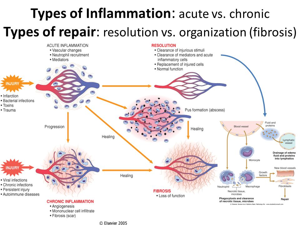 Types of Inflammation: acute vs. chronic Types of repair: resolution vs. organization (fibrosis)