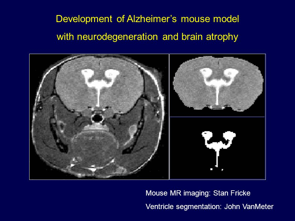 Development of Alzheimer's mouse model with neurodegeneration and brain atrophy
