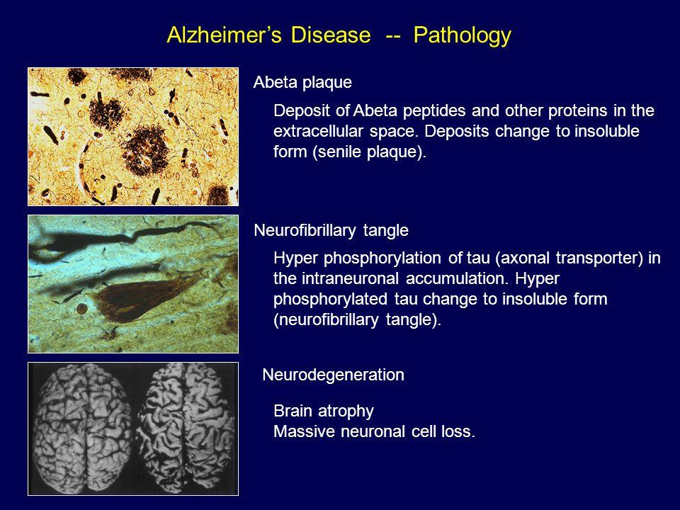 Alzheimer's Disease -- Pathology