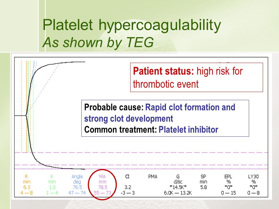 Platelet hypercoagulability As shown by TEG