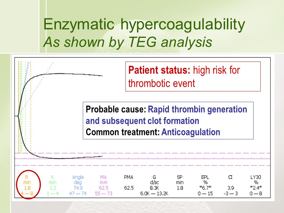 Enzymatic hypercoagulability As shown by TEG analysis