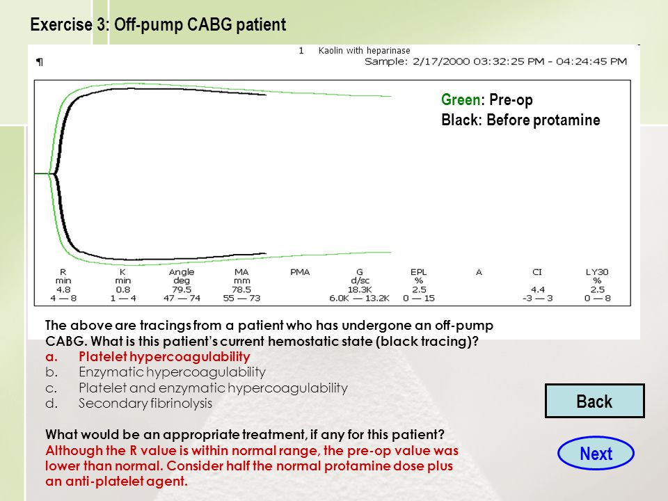 Exercise 3: Off-pump CABG patient