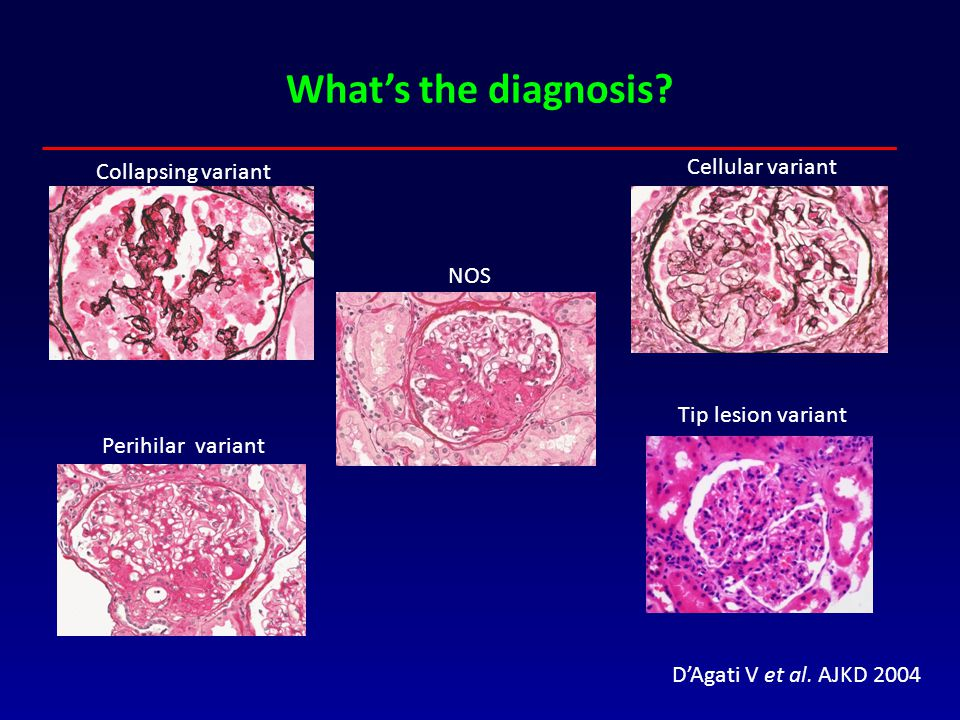 What's the diagnosis Cellular variant Collapsing variant NOS