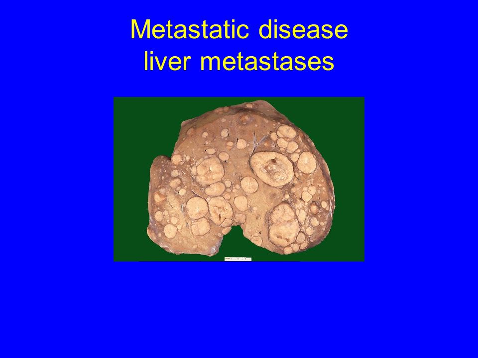 Metastatic disease liver metastases