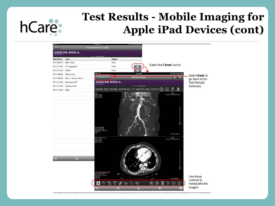 Test Results - Mobile Imaging for Apple iPad Devices (cont)