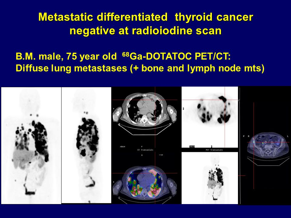 Metastatic differentiated thyroid cancer negative at radioiodine scan