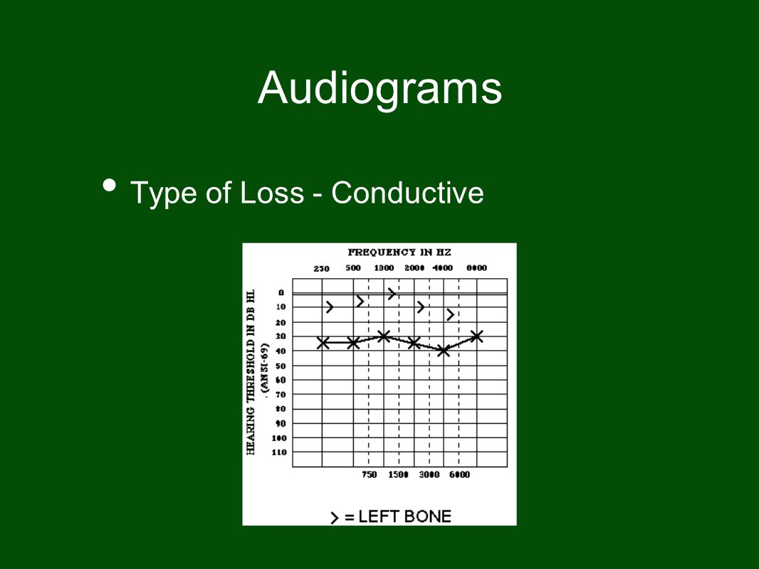 Audiograms Type of Loss - Conductive