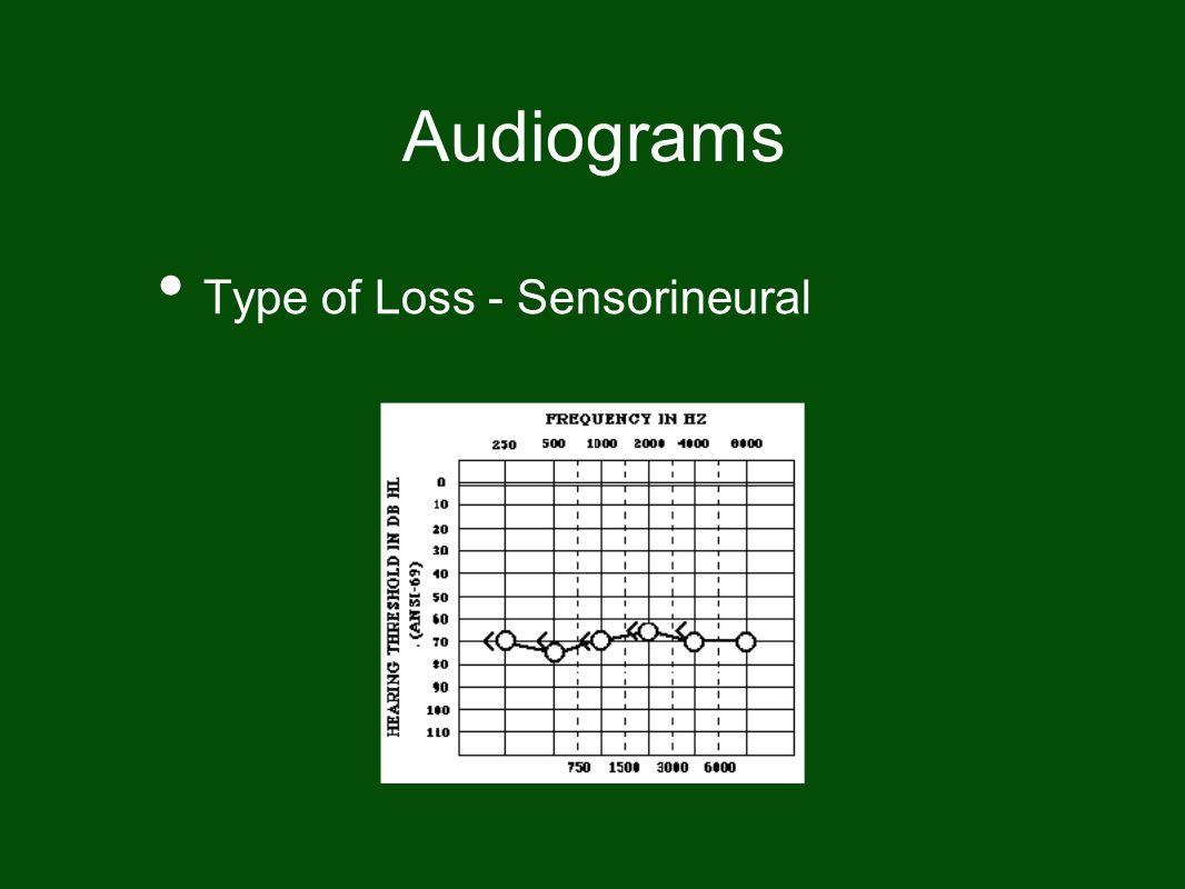 Audiograms Type of Loss - Sensorineural