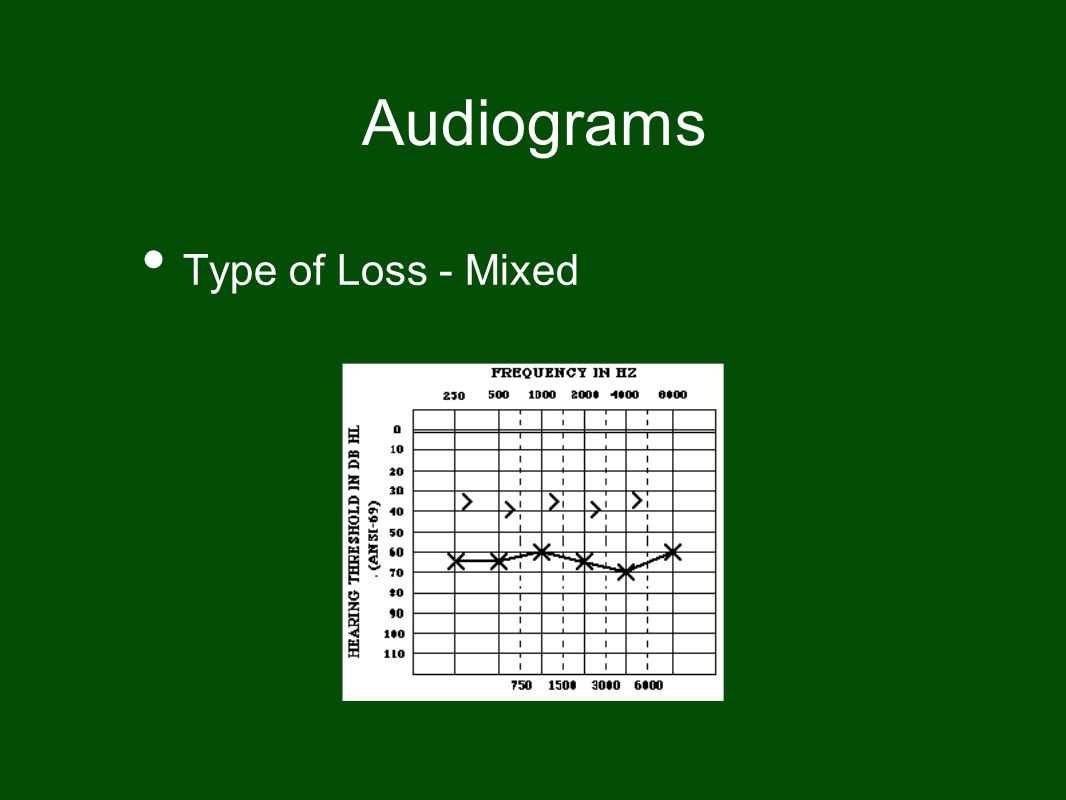 Audiograms Type of Loss - Mixed