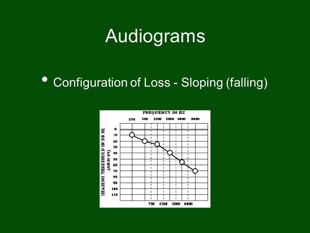 Audiograms Configuration of Loss - Sloping (falling)