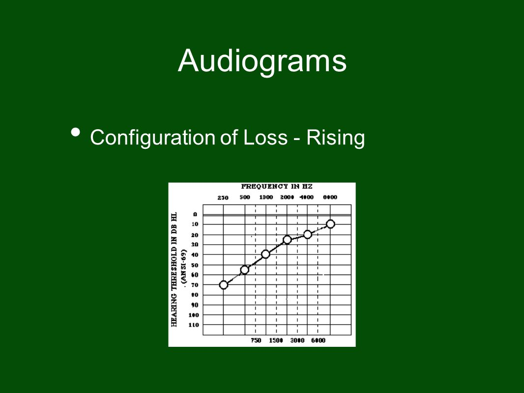 Audiograms Configuration of Loss - Rising