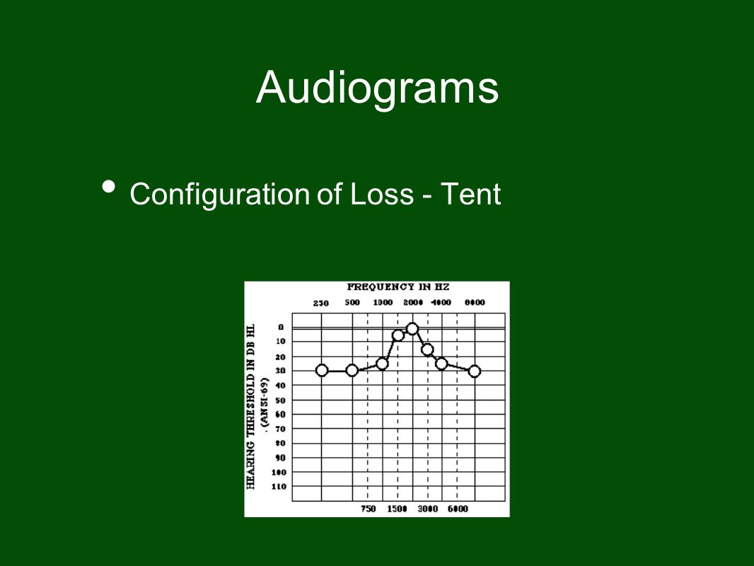 Audiograms Configuration of Loss - Tent