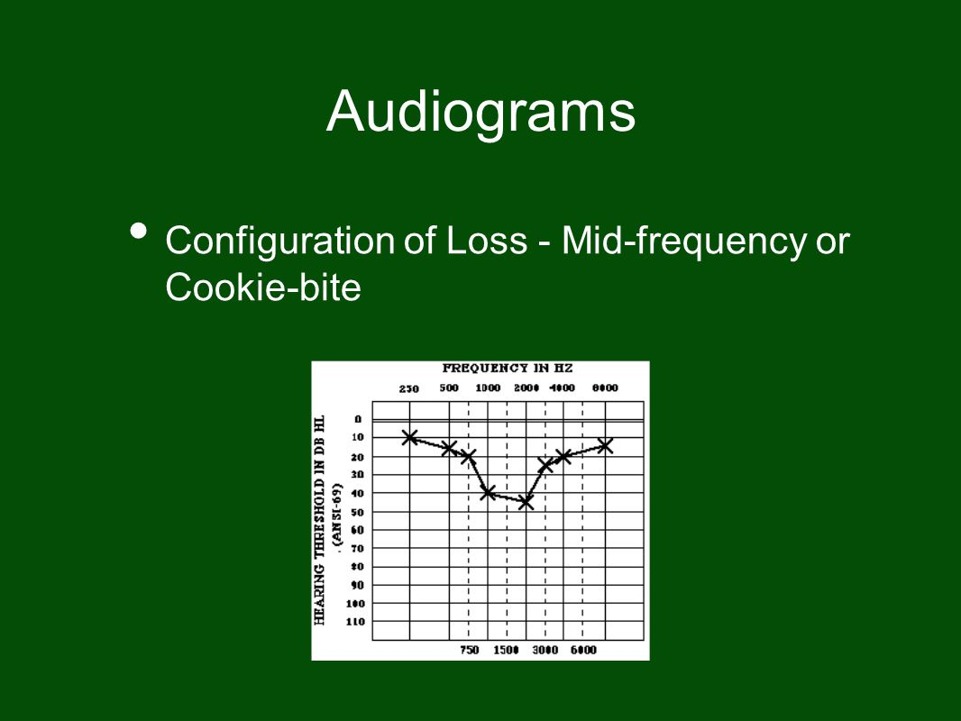 Audiograms Configuration of Loss - Mid-frequency or Cookie-bite