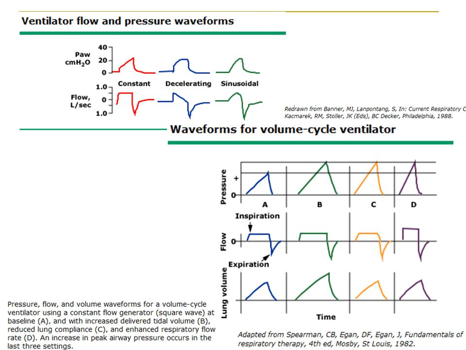 Flow and pressure waveforms for the different flow patterns: square wave (constant flow), a ramp wave (decelerating flow), and a sinusoidal wave (figure 3).