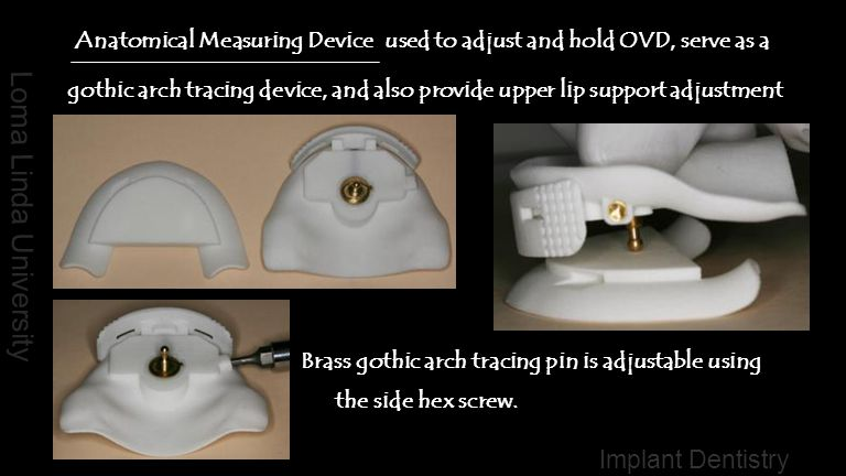 Anatomical Measuring Device used to adjust and hold OVD, serve as a gothic arch tracing device, and also provide upper lip support adjustment