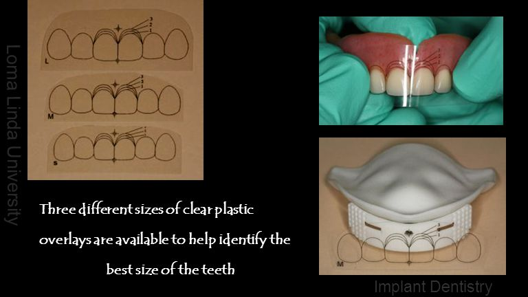 Three different sizes of clear plastic overlays are available to help identify the best size of the teeth
