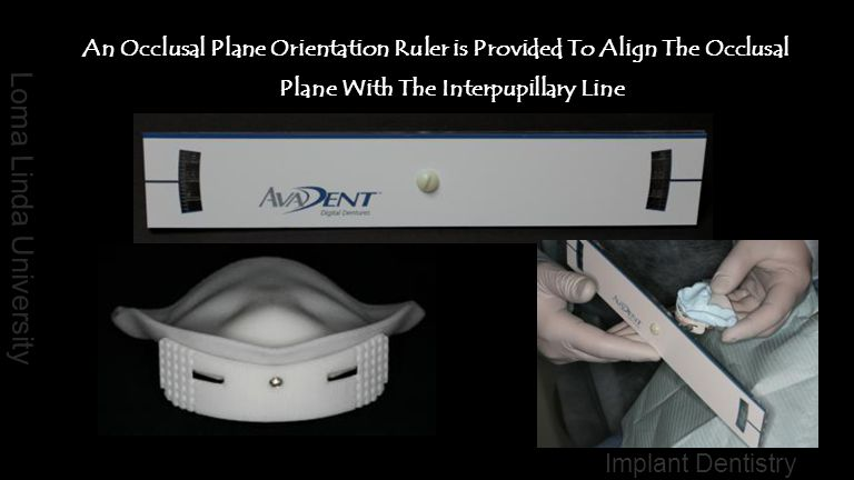 An Occlusal Plane Orientation Ruler is Provided To Align The Occlusal Plane With The Interpupillary Line
