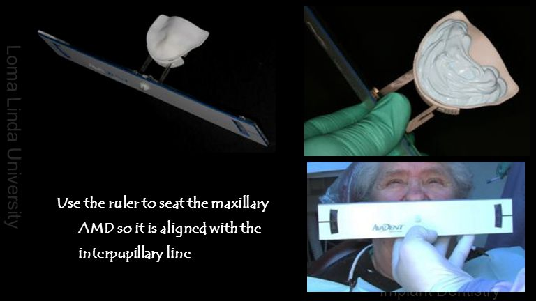 Use the ruler to seat the maxillary AMD so it is aligned with the interpupillary line