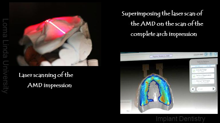 Superimposing the laser scan of the AMD on the scan of the complete arch impression