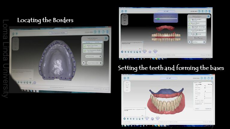 Locating the Borders Setting the teeth and forming the bases