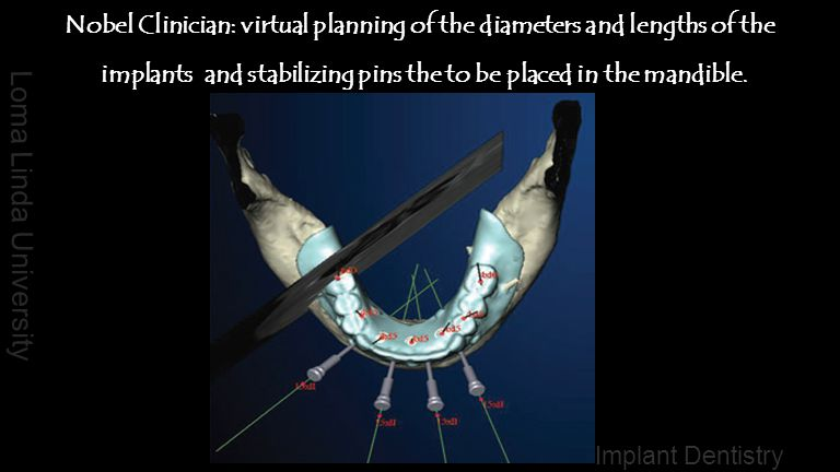 Nobel Clinician: virtual planning of the diameters and lengths of the implants and stabilizing pins the to be placed in the mandible.