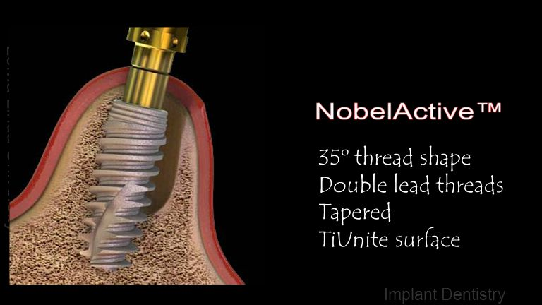 35º thread shape Double lead threads Tapered TiUnite surface