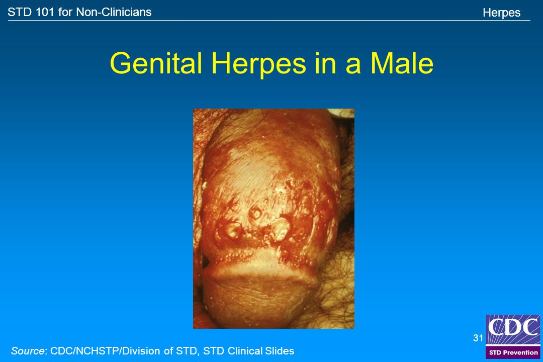 Genital Herpes in a Male