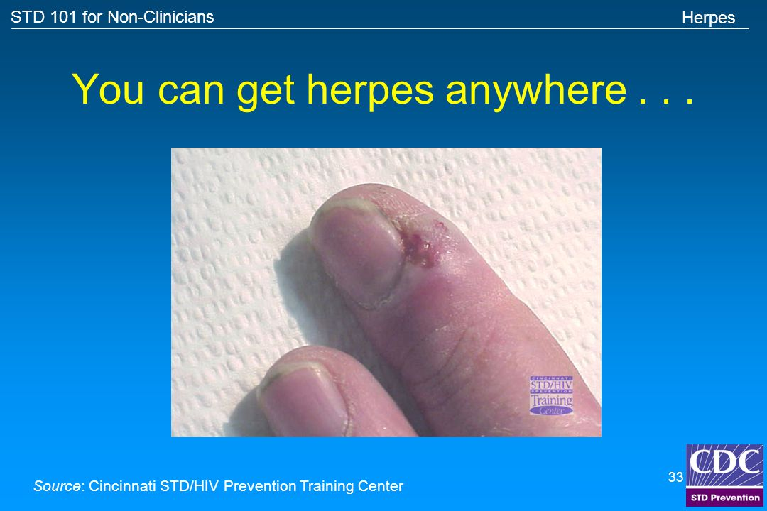 Can you get herpes from anal