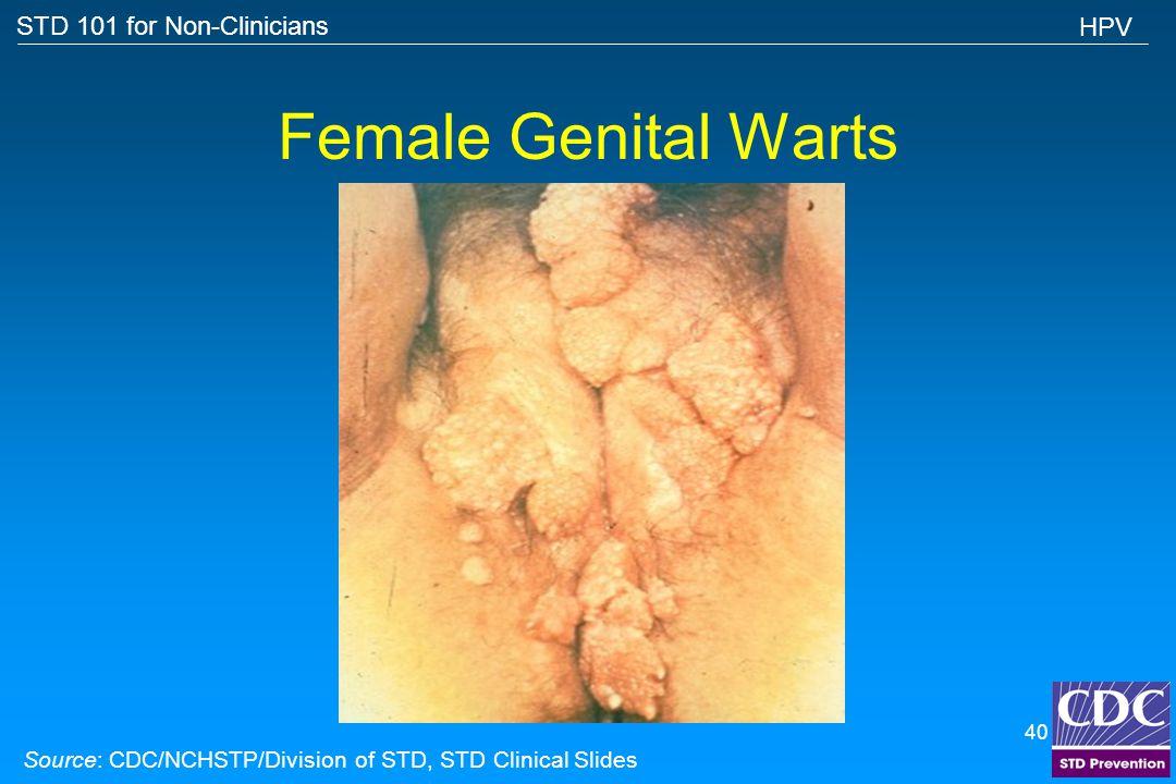 Female Genital Warts HPV