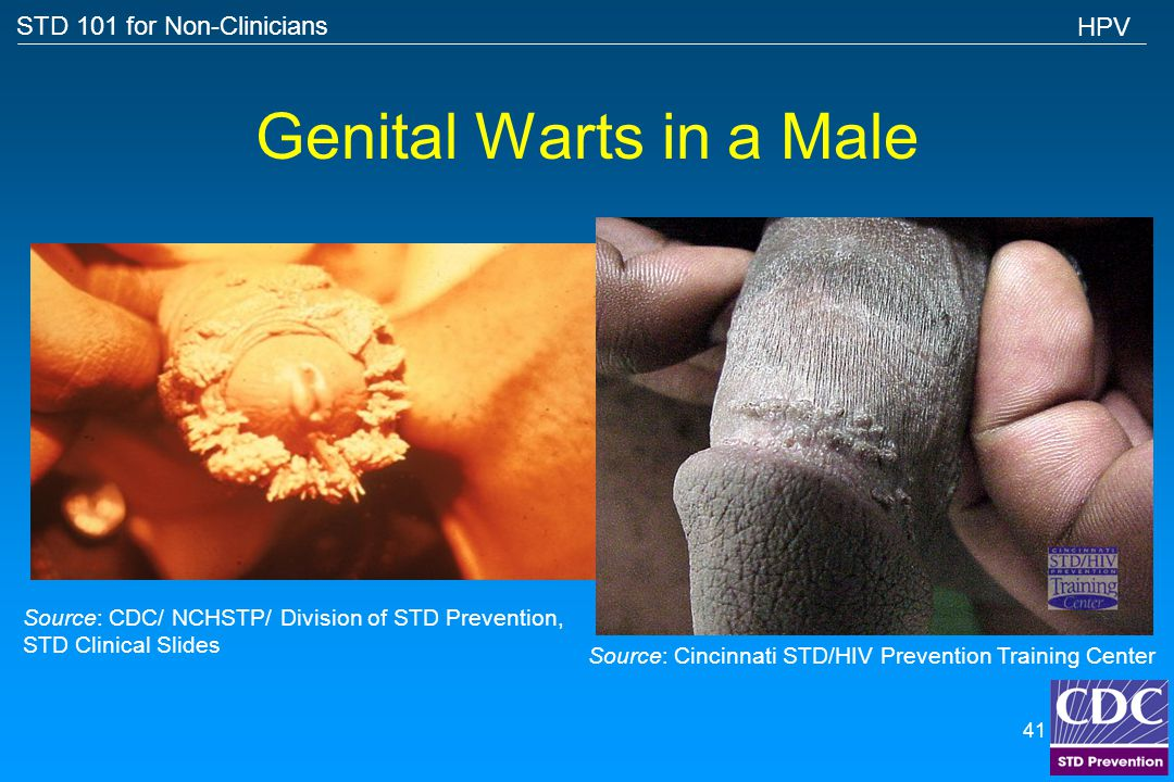Genital Warts in a Male HPV
