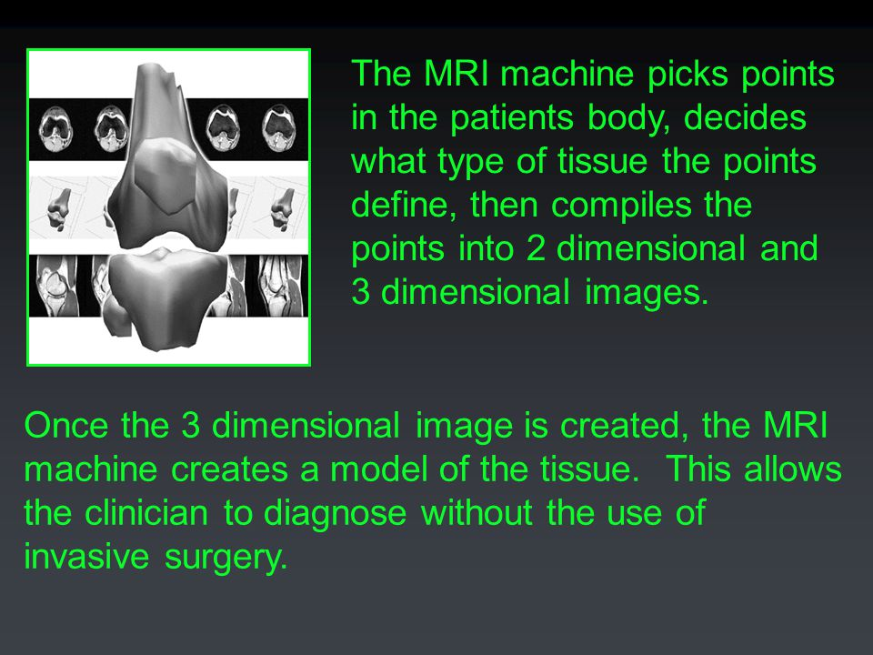 The MRI machine picks points