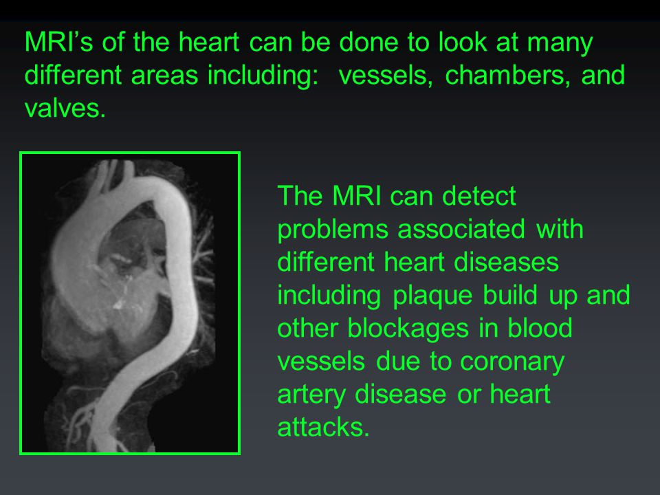 MRI's of the heart can be done to look at many different areas including: vessels, chambers, and valves.