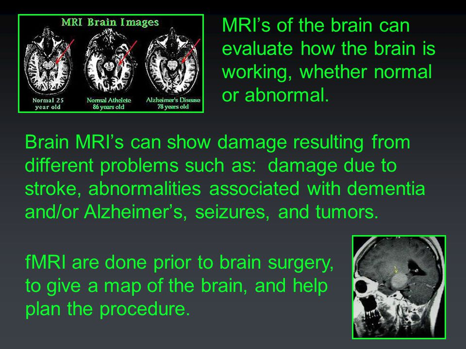 MRI's of the brain can evaluate how the brain is working, whether normal or abnormal.