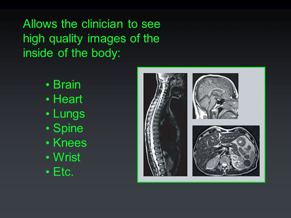 Allows the clinician to see