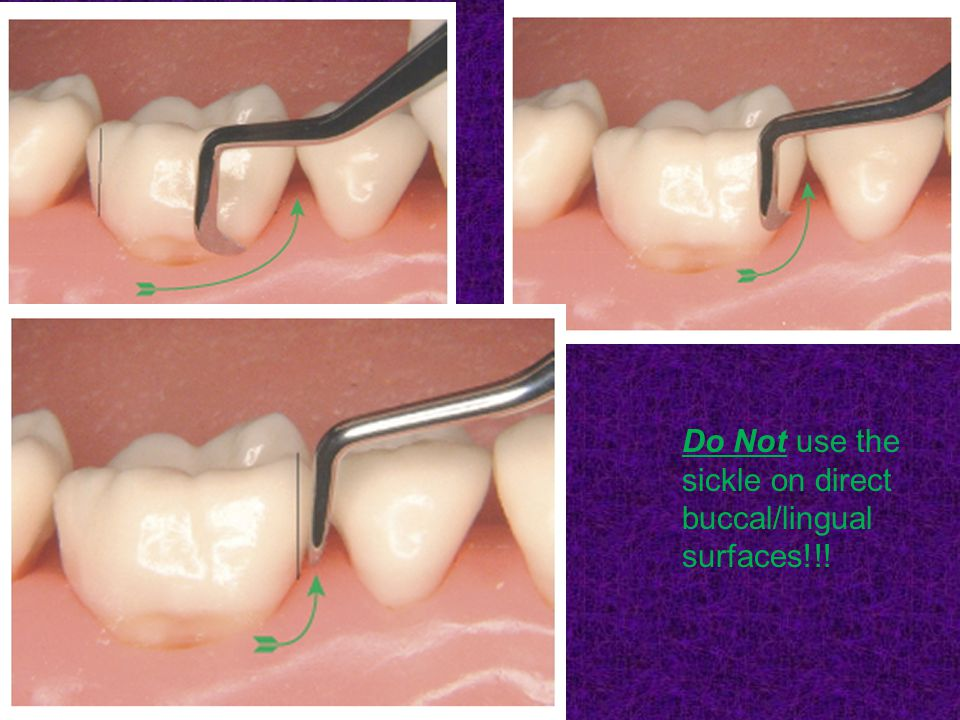 Do Not use the sickle on direct buccal/lingual surfaces!!!