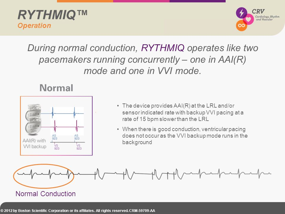RYTHMIQ™ Operation. During normal conduction, RYTHMIQ operates like two pacemakers running concurrently – one in AAI(R) mode and one in VVI mode.