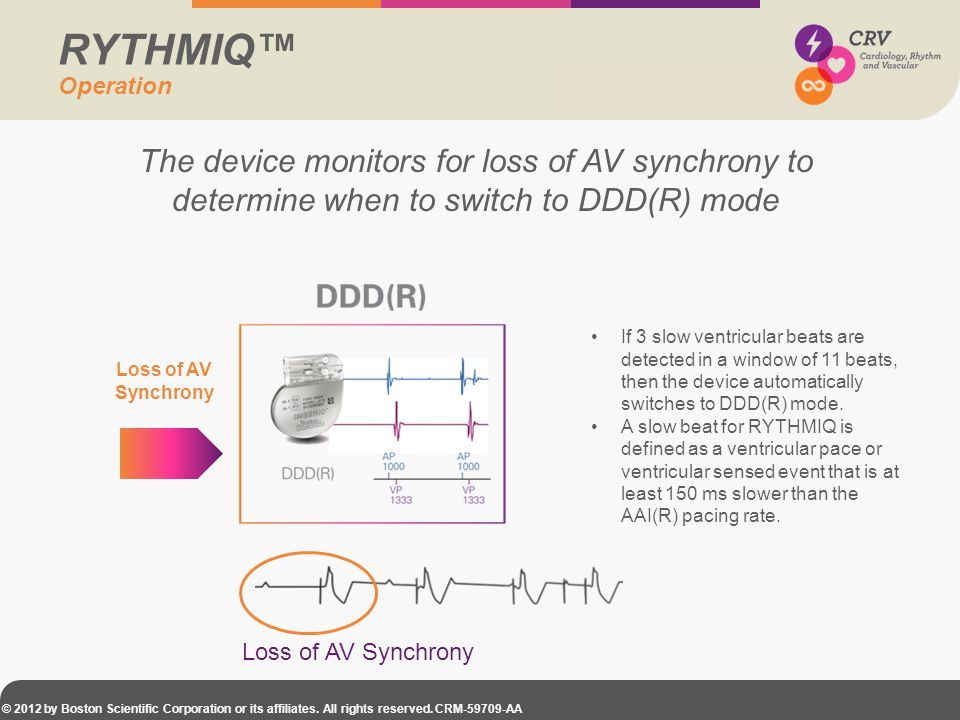 RYTHMIQ™ Operation. The device monitors for loss of AV synchrony to determine when to switch to DDD(R) mode.