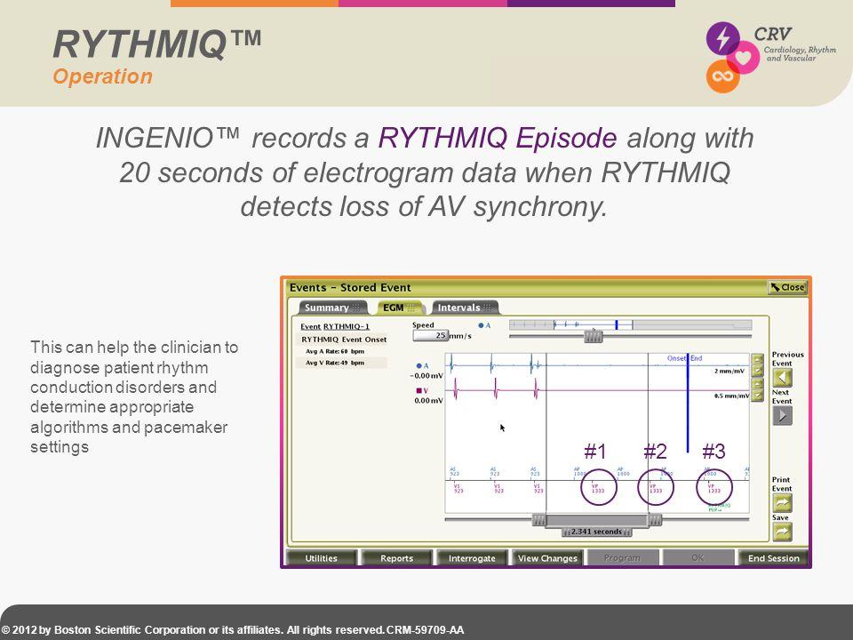 RYTHMIQ™ Operation. INGENIO™ records a RYTHMIQ Episode along with 20 seconds of electrogram data when RYTHMIQ detects loss of AV synchrony.