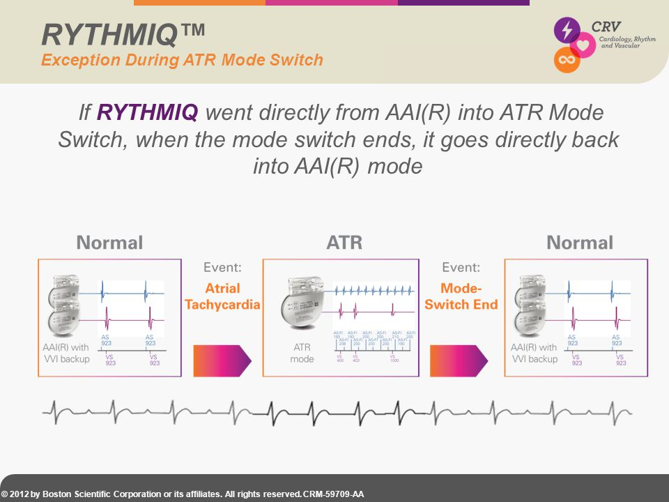 RYTHMIQ™ Exception During ATR Mode Switch.